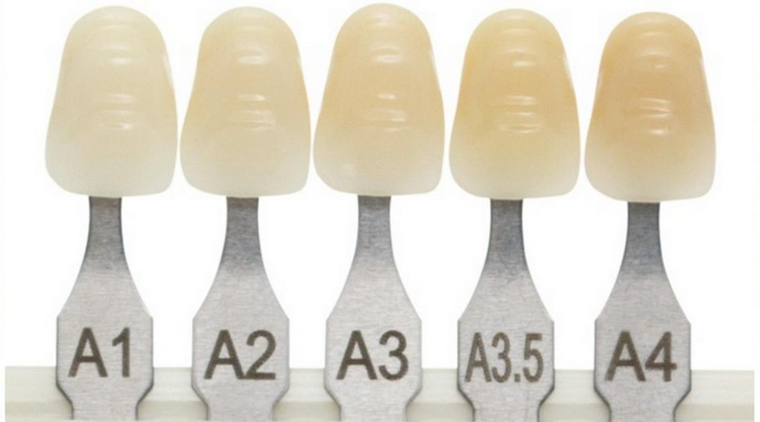 A1 / 2 /3 /3,5 /4 színek